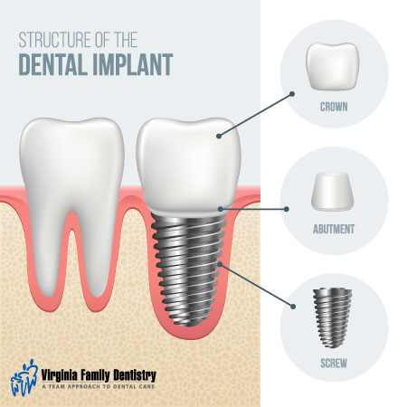 Structure of a dental implant | Virginia Family Dentistry
