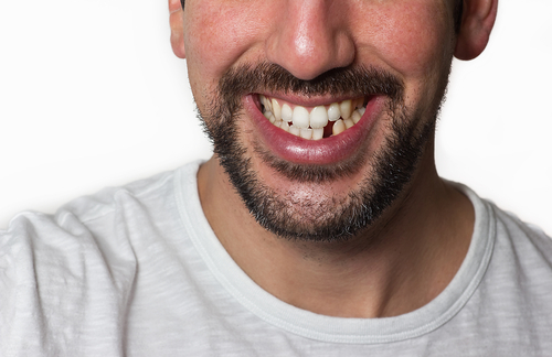 5 ways to replace a missing tooth